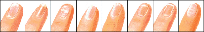 nagel-probleme-2